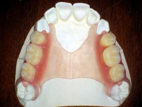 Частична еластична зъбна протеза ThermoSens