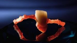 композит фотополимерни индиректни възстановявания варна марин дунев