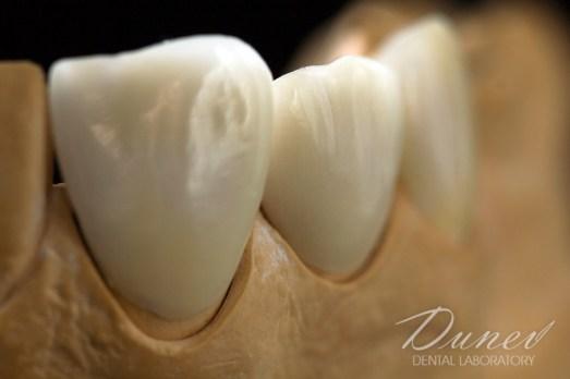 фасети фелдшпат керамика зъботехническа лаборатория варна марин дунев veneers feldspatic