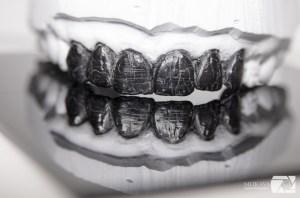 Диагностичен восъчен моделаж зъботехническа лаборатория естетика варна