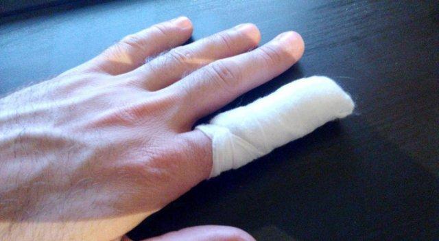 На Херсонщині поліцейському зламали палець: подробиці інциденту » Новости Херсон