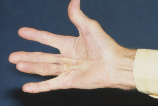 Bump on palm of hand and contractures of fingers related to Dupuytren contracutre
