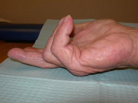Dupuytren Contracture Pictures - Dupuytren Contracture Institute
