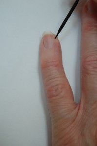 Find a good point for measurement of contracture of hand by using the corner of the nail bed when the hand won't open.