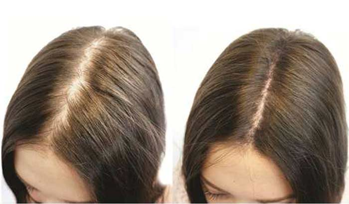 Bentonite Clay For Hair Mask 4C Before And After Loss