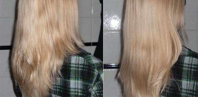 Hair Results Growth Msm
