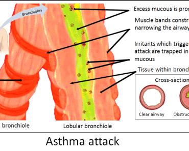 अस्थमा क्या हैं जानिए हिंदी में (What is Asthma in Hindi)