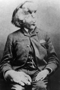 Portrait of Joseph Merrick, also known as Elephant Man