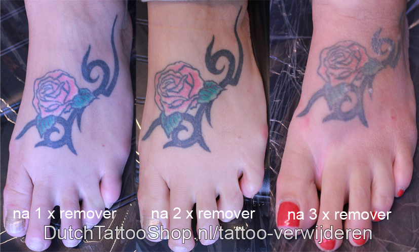 tattoo-verwijderen-remover-lichter-weghalen-ipv-laser-verwijdering