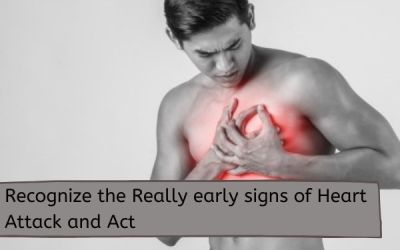 Recognize the Really Early Signs of Heart Attack and Act