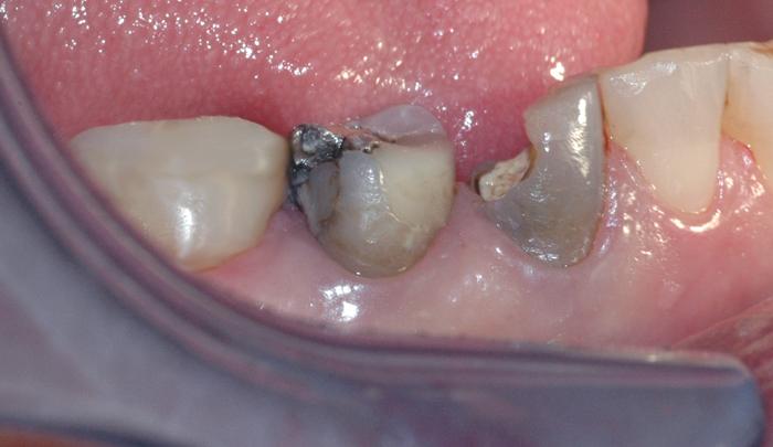 Bildet viser to tenner som er svært skadet. Tennene er svake, og ikke egnet for vanlig fyllingsterapi.