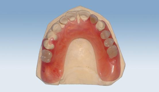 Bildeserien viser en delprotese (valplast) sett fra forskjellige vinkler.