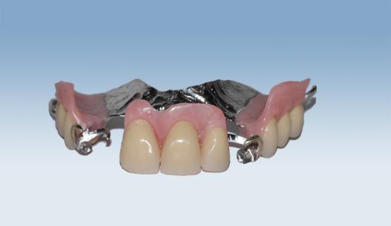 Bildeserien viser en delprotese (vitallium) sett fra forskjellige vinkler.