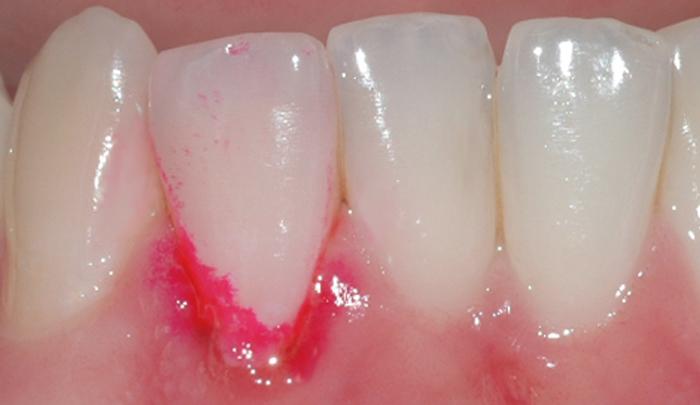 Ved å benytte et fargestoff, kan man lettere se belegget som er årsak til betennelsen i tannkjøttet.