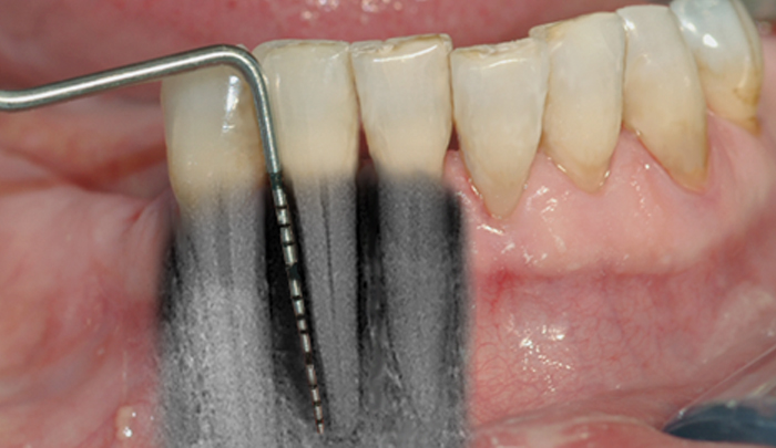 Bentapet bekreftes av et røntgenbilde – skaden er her så stor at tannen må tas bort.