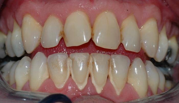 Bildet viser et nærbilde av tennene i underkjeven med tannstein og misfarging.