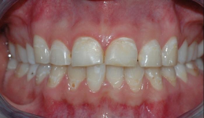 Bildet viser tenner som har vært utsatt for syrepåvirkning.