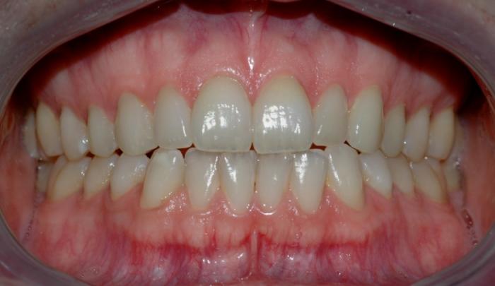 Bildet viser tenner før bleking. Tennene har ingen synlige fyllinger og kan derfor egne seg godt for bleking.