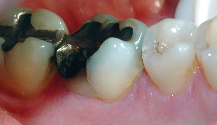 Bruddlinjen førte over tid til at tannen frakturerte.