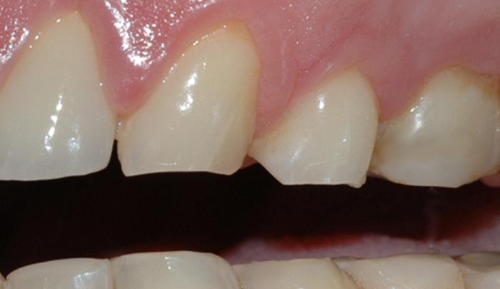 Et detaljbilde viser rette, slitte kanter på tennene.