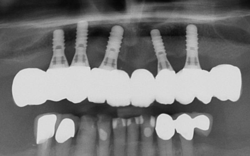Et OPG-røntgen viser hvordan implantatene står i kjeven.