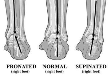 pod-med-pronation-diagram