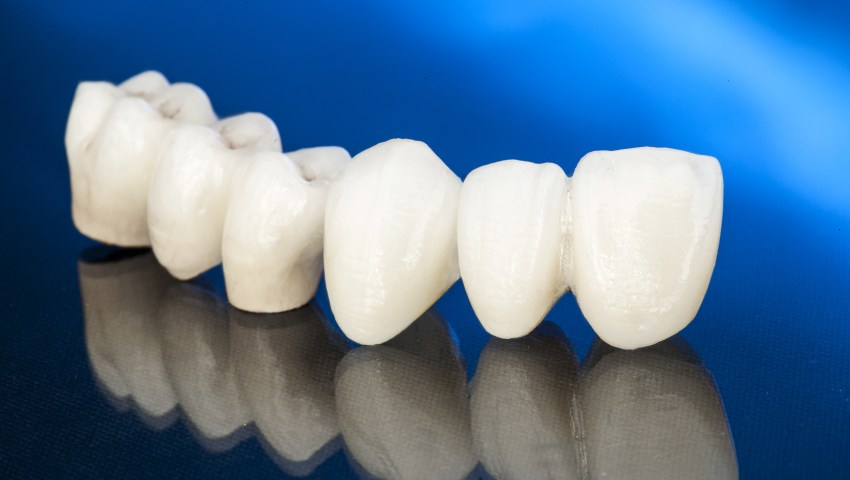 Dental Crowns by Plano Dentist