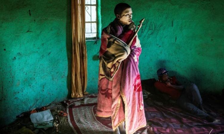 En Afrique du Sud, le combat d'une femme-médecin contre les circoncisions rituelles