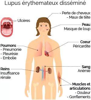 Santé/Maladie des reins: les principales causes.