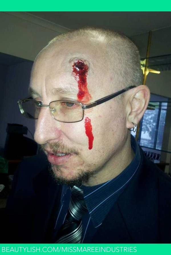 Bullet Wound Blunt Force Trauma Paige Ms