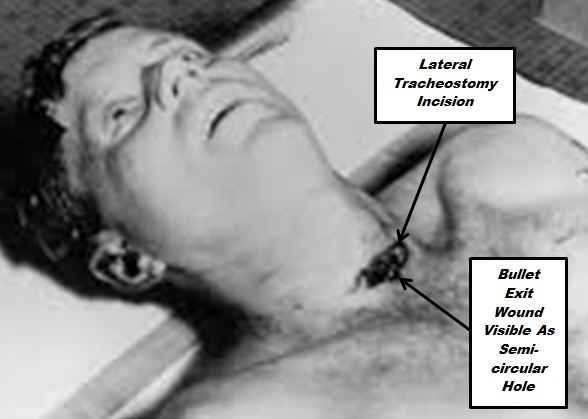 The Magic Bullet In The Jfk Assassination Dying Words