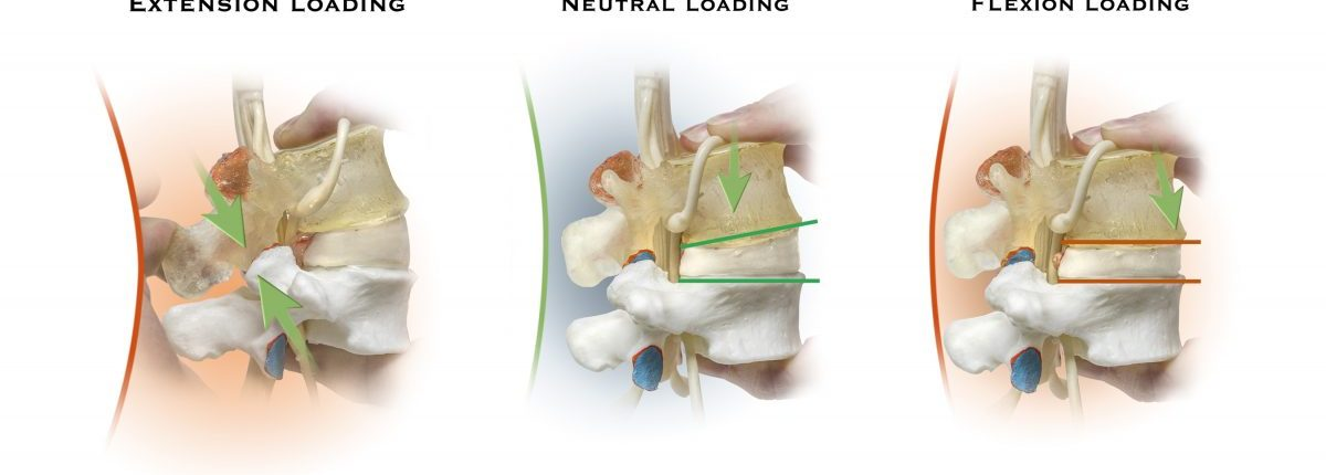 dynamic spine model