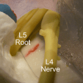 A spine model with herniating nucleus pulposus and a right posterior-lateral radial and circumferential tear