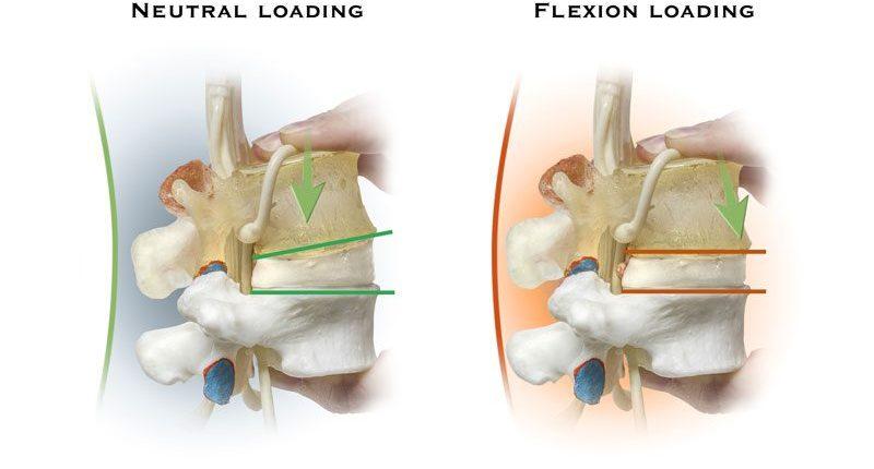 spine loading