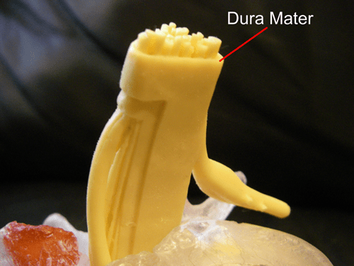 Spinal Cord - Dura Mater