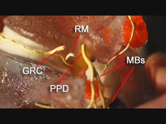 Innervation to motion segment - Custom Neurology