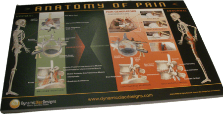 Tear-off back pain mini poster for patients
