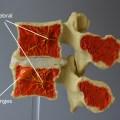 A L4-L5 Modic Model midsagittal cut demonstrating Type 1 Modic changes and the basivertebral nerve