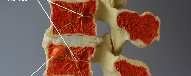 A L4-L5 Modic Model midsagittal cut demonstrating Type 1 Modic changes and the basivertebral nerve