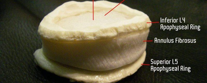 Lumbar disc model