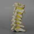 A cervical spine model with hypermobility, herniating nucleus and central disc protusion