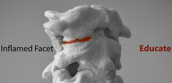 Patient Education - Cervical Models