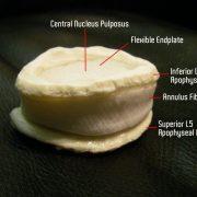 Dynamic Disc Model