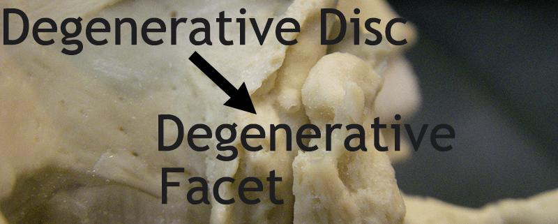 Degeneration