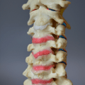 Cervical spine model to demonstrate hypermobility, with elastomeric discs and a red annulus to demonstrate nuclear extrusion and canal encroachment