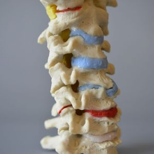 Multilevel Multicoloured Cervical Model - Disc Herniation