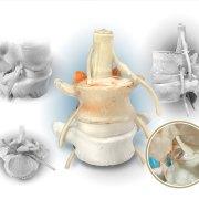 spine anatomy model canada