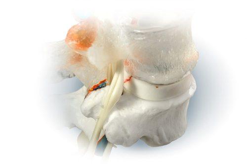 3D movable spine anatomy models