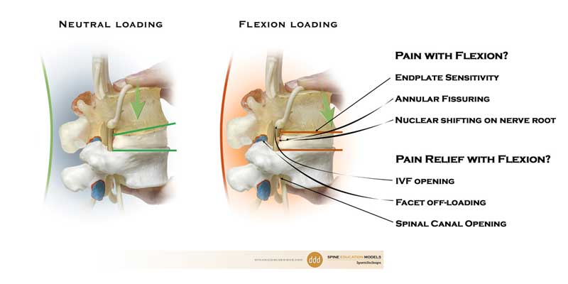 flexion, lumbar, model, pain, relief