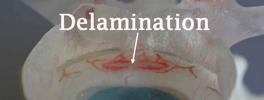 delamination, annulus